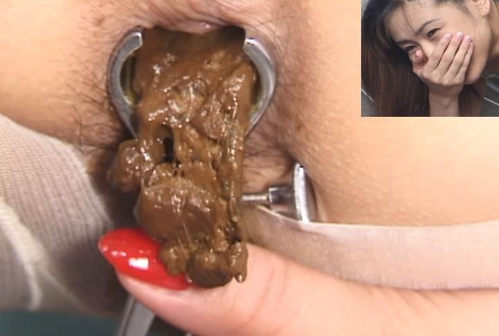 Uncensored Closeup Defecation Medical Scat Fetish, Scat -9585